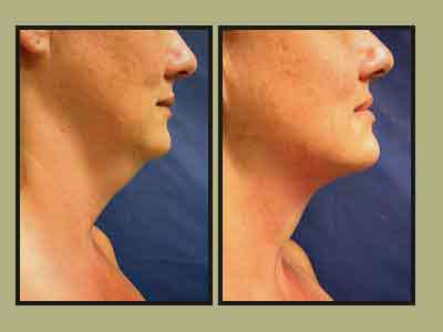 How to get rid of Double chin and Face fat