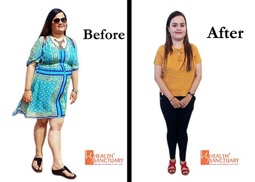 Weight Loss Testimonial 2