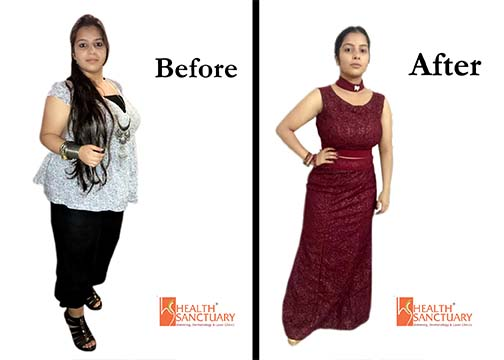 Weight Loss Testimonial 4 - Health Sanctuary