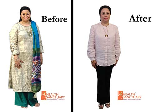 Weight Loss Testimonial - Health Sanctuary